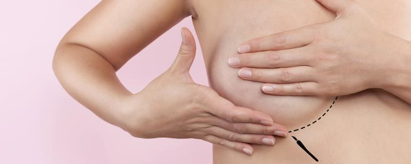 rindade suurendamine plastikakirurg