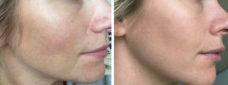IPL treatment before&after
